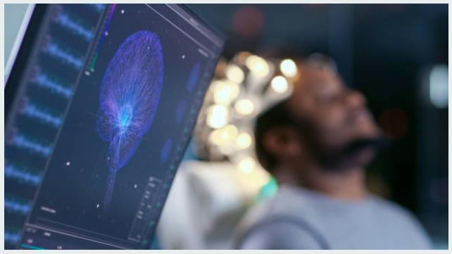 Cómo ser neuropsicólogo en España